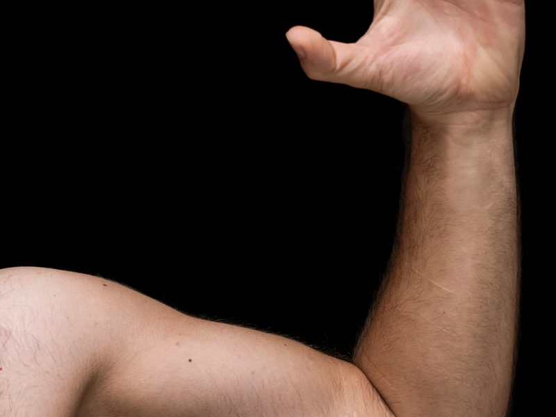 Shoulder Dislocations Made Simple.